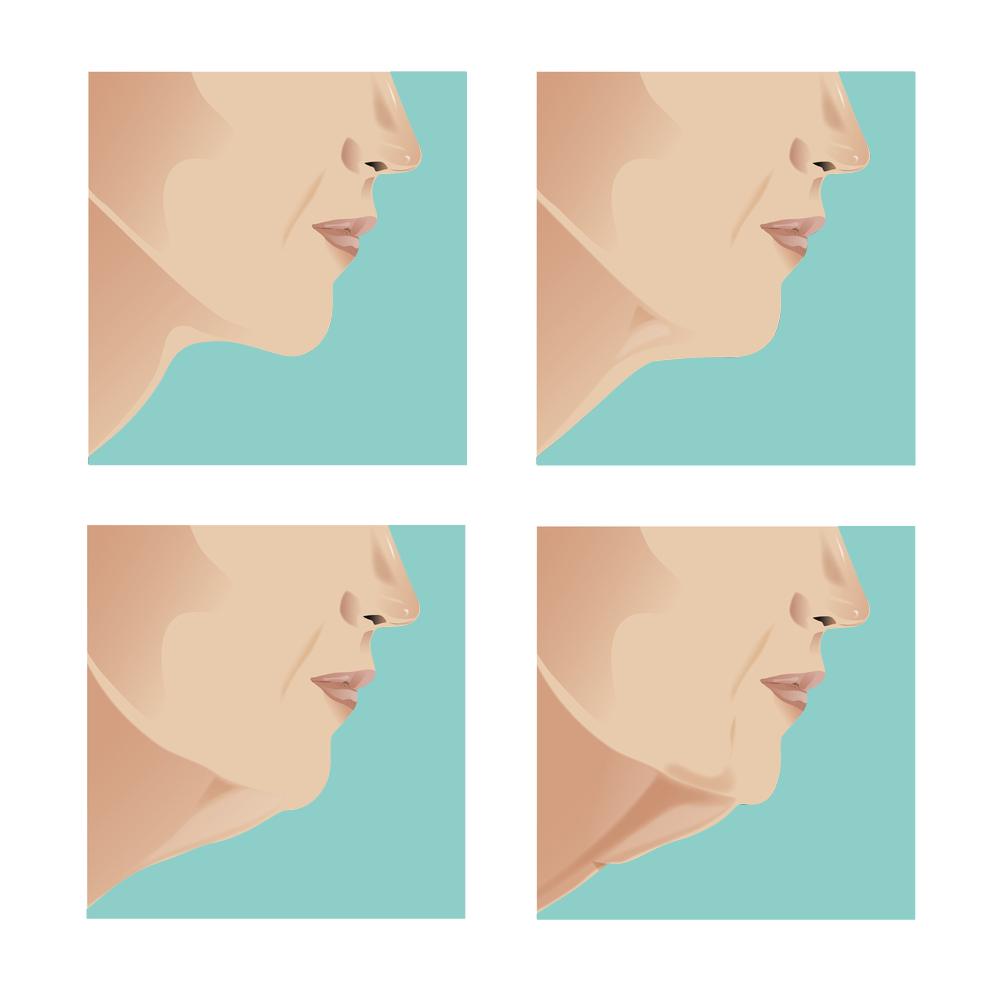 Ansigtskirurgi