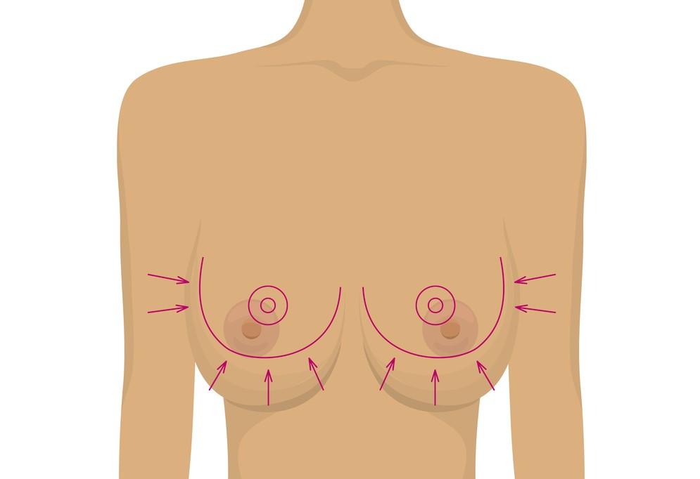Brystreduktion